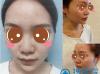 杭州时光肋软骨垫鼻尖+膨体隆鼻术后恢复图片及动态视频
