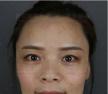 上海首尔丽格金柱假体隆鼻案例 一起见证漂亮妈妈的华美逆袭