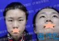 常州施尔美隆鼻好吗?东方芭比综合美眼术+假体隆鼻术后效果公开