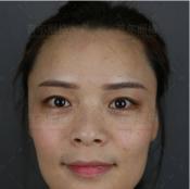 公开我找上海首尔丽格金柱医生做隆鼻和自体脂肪填充的亲身经历