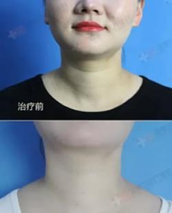 如何去除颈部的皱纹?嗨体去颈纹单次价格是多少钱?