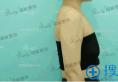 看70后妈妈在杭州瑞丽找宋建良做假体隆胸的案例效果图怎么样