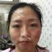 【案例】看我在上海光博士做激光祛痘印恢复过程图效果怎么样
