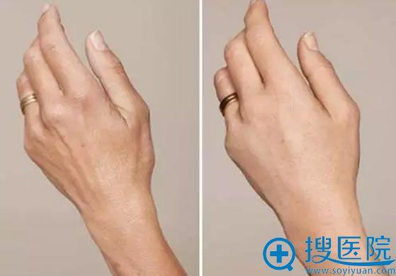 唤醒肌肤修复能力的案例