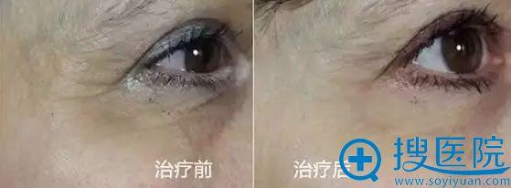 法国丝丽动能素改善眼周衰老的效果