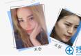 【案例】看我找上海玫瑰李鸿君做的隆鼻术后恢复效果图怎么样