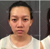 【实例】看我找上海华美张朋主任做的双眼皮案例效果怎么样