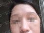 清奥失败后找荔湾区人民医院邓正军为她成功取出面部奥美定