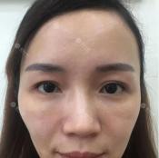 【视频案例】看我找重庆华美潘宝华做的面部线雕提升效果好不好