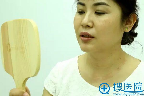 嗨体祛颈纹术后即刻的照片