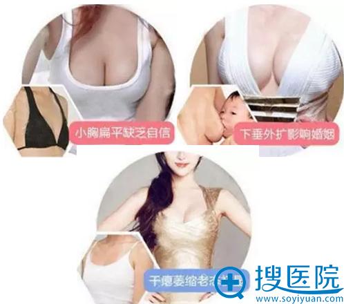 假体隆胸改善胸部扁小、下垂、萎缩