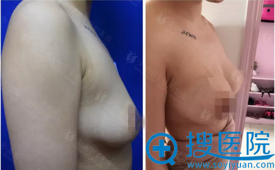 假体丰胸术前术后对比照片