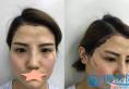 西安西京医院自体脂肪填充太阳穴和额头真人案例恢复过程