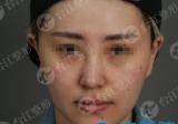 找福州台江虞守辉主任注射瘦脸针的妹子分享术后15天治疗效果图