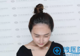 四川华美紫馨发际线种植全过程及术后3个月恢复照片分享