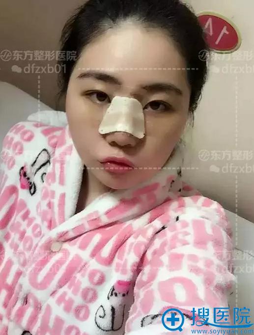 在郑州东方做完假体隆鼻3天的效果