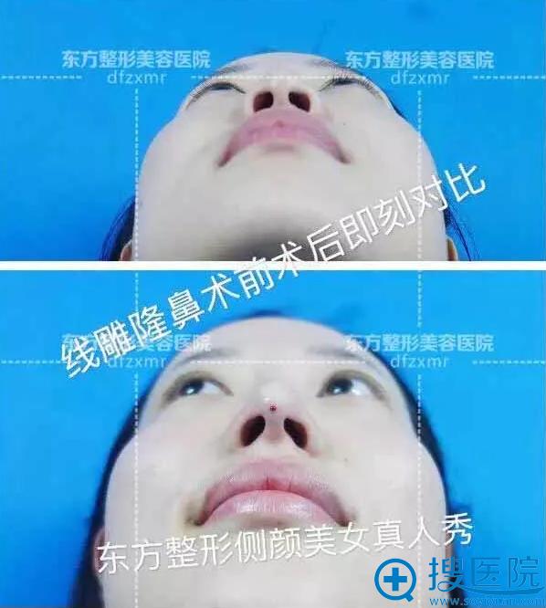 郑州东方线雕隆鼻术后即刻效果