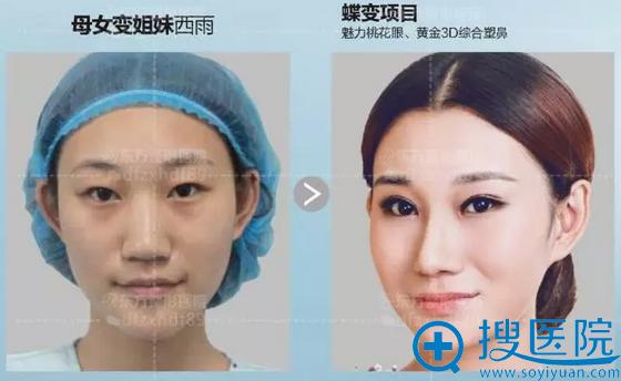 郑州东方线雕隆鼻案例