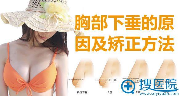 胸部下垂的原因及矫正方法