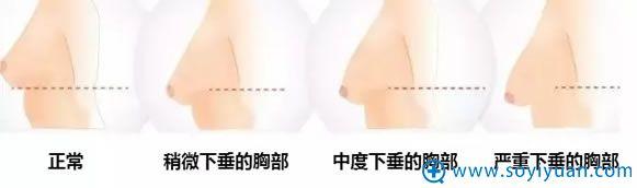 不同程度的乳房下垂矫正方法