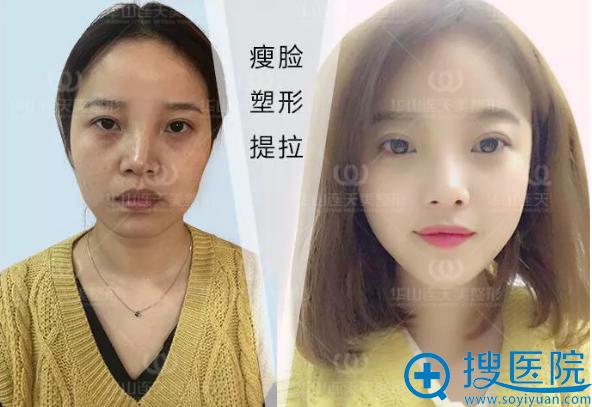 杭州华山连天美玻尿酸+瘦脸针注射案例对比