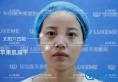 【案例】在杭州华山连天美注射瘦脸针+玻尿酸后从路人秒变女神