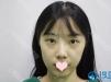 上海盈美下眼下至手术刚做完以及术后1个月的对比图片分享