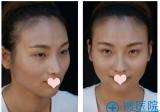 看我找上海薇琳医美孙荣院长做的自体脂肪填充全脸案例图怎么样