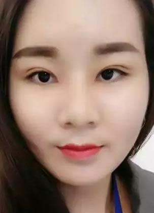 找北京伊美尔黄志祥做的面部吸脂手术1个月恢复过程及效果图