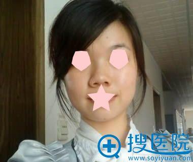 在广州时光整形医院做鼻整形前的样子