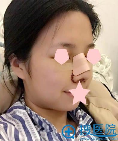 做完鼻综合术后第1天的照片