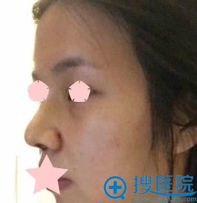 膨体隆鼻+耳软骨垫鼻尖拆线后的效果