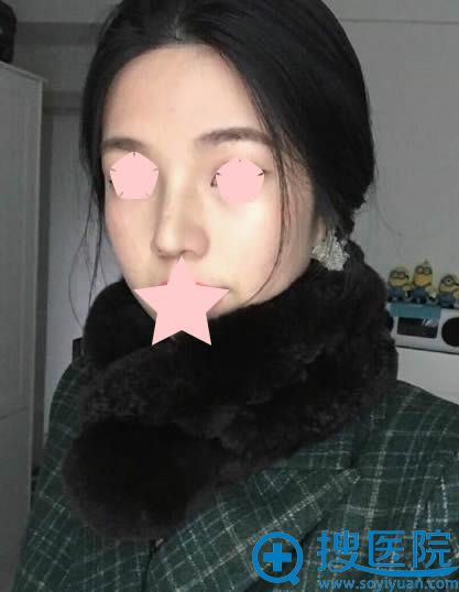 在广州时光做鼻综合恢复期图片