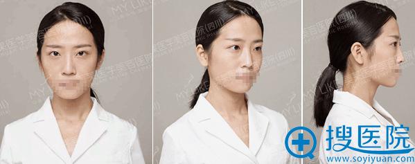 线雕隆鼻+玻尿酸填充面部术前照