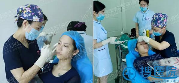 夏秋线雕隆鼻+玻尿酸丰面部手术