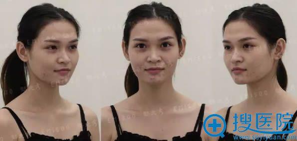 在广州懿美秀医院做自体脂肪面部轮廓填充前的样子