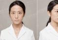 四川美莱夏秋线雕隆鼻+玻尿酸面部填充手术15天恢复日记