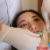 上海那里做牙齿矫正好?上海玫瑰牙齿隐形矫正案例全过程分享