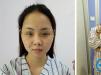 深圳晨曦朱春艳鼻综合+假体下巴术后3个月效果自然不夸张
