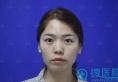 终于赶在年前找杭州美莱李波院长做了自体脂肪填充后有了桃心脸