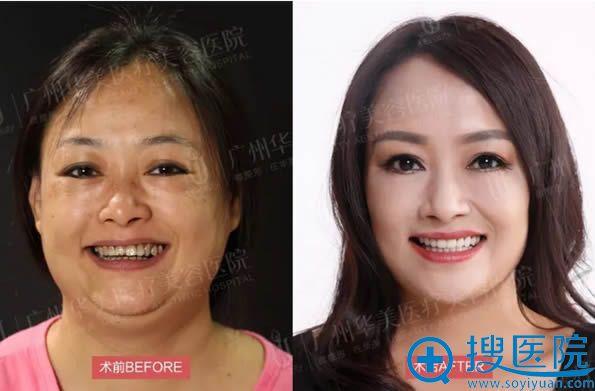 广州华美U美极拉提+全身吸脂术后一个月对比照