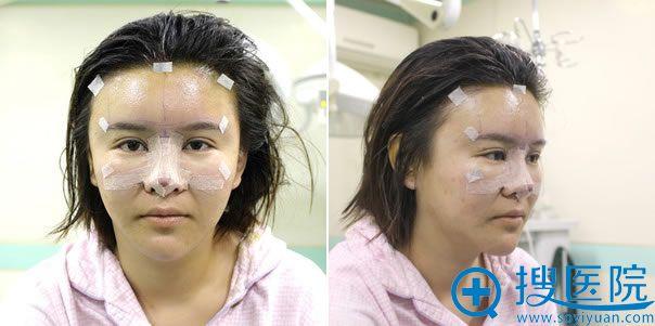 鼻修复手术完成即刻照片