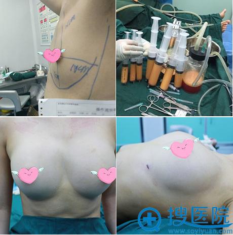深圳易容颜魏晓峰自体脂肪丰胸术后即刻效果对比