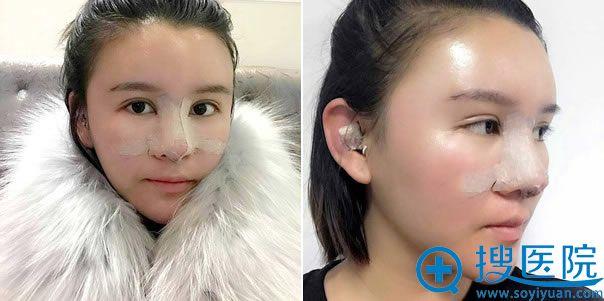 鼻修复手术第1天照片