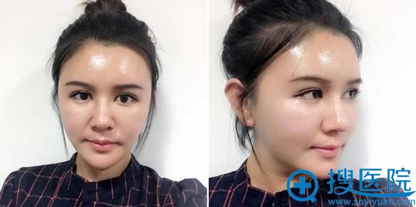 鼻失败修复手术拆线的照片