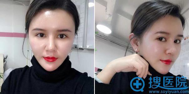 北京新星靓鼻修复手术12天效果