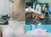 深圳易容颜医疗美容魏晓峰自体脂肪丰胸术后5个月恢复效果图