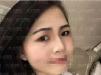 长沙真爱整形刘芝欧式双眼皮真人案例术后效果对比分享