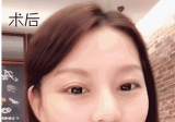 真实双眼皮+开眼角案例为你揭秘上海美莱杜园园做眼睛怎么样