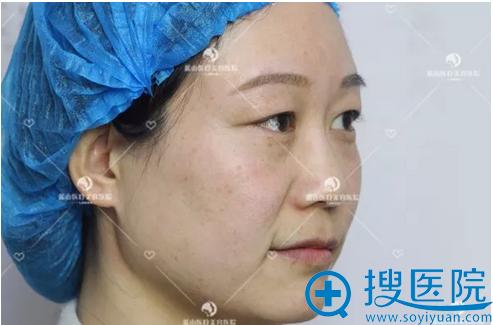 保定蓝山整形医院m22激光祛斑案例一周后恢复过程图分享
